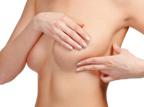 Mastopexia, pexia levantar  pecho, elevar mama, cirugía eatérica métodos